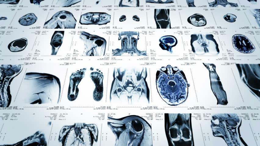MRI video wall. Black and white. Loopable. Frontal view. 2 videos in 1 file. Composite video showing multiple MRI images including: head, neck, arm, foot, pelvis, etc. More options in my portfolio.