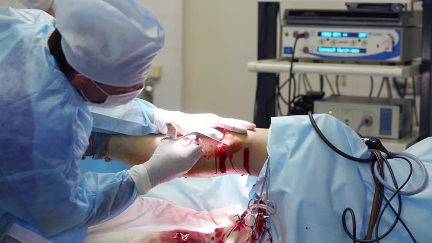 MOSCOW - SEP 1, 2015: Doctor conducts endoscopy surgery on knee joint in Center of endosurgical and lithotripsy