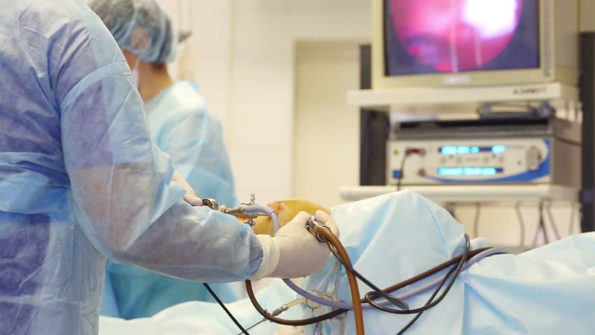 Hands of doctor, nurse out of focus and display during endoscopy surgery on knee joint