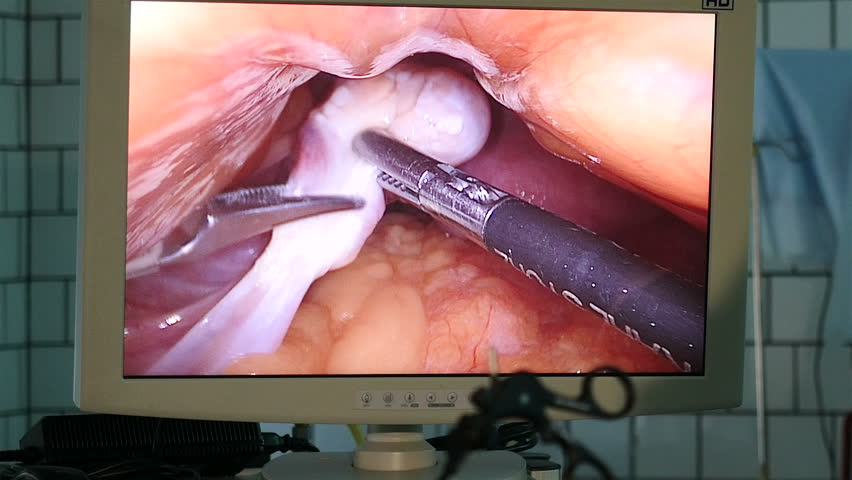 SAINT-PETERSBURG, RUSSIA, OCTOBER 2015: View of laparoscopic surgery on the monitor, Full HD footage
