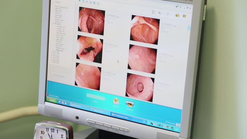 MOSCOW, RUSSIA - AUGUST 31, 2015: Human scrolls pictures obtained by the endoscope on a computer in Center of Endosurgery and Lithotripsy (CELT)