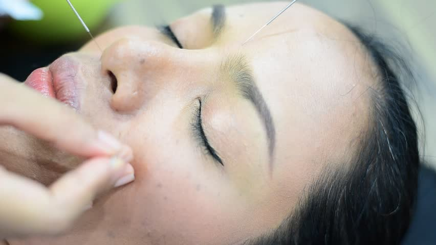 Blurry of Closeup  hand performing acupuncture therapy at face patient.   Shutterstock HD Video #25197923