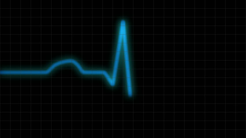 HD ECG / EKG-curve. A typical ECG tracing of a normal heartbeat (or cardiac cycle) consists of a P wave, a QRS complex and a T wave. Blue line with monitor grid.