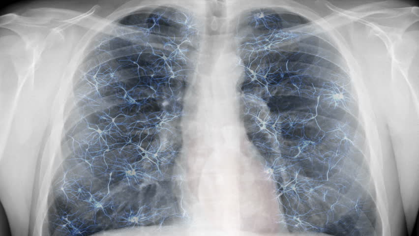 Chest x-ray - nervous system. Animation of breathing chest and artificial nervous system.